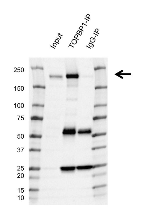 Anti TOPBP1 Antibody, clone E03/6C8 (PrecisionAb Monoclonal Antibody) thumbnail image 2
