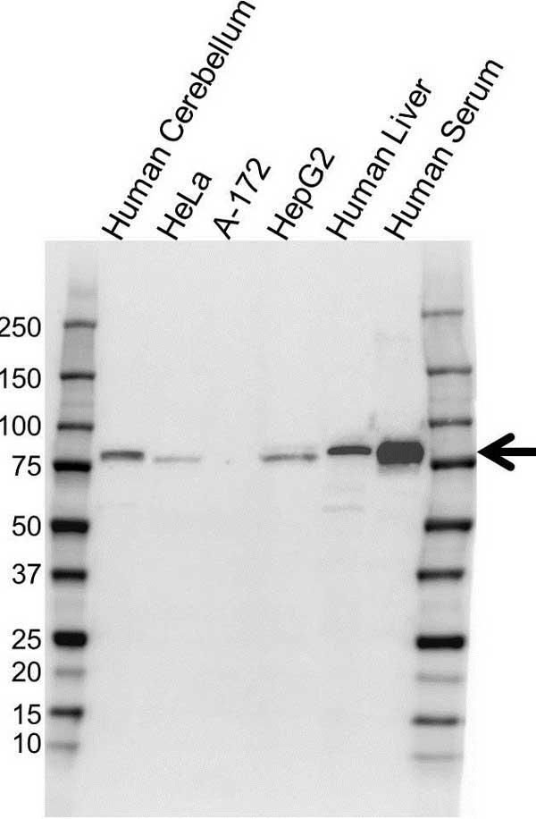 Anti Transferrin Antibody (PrecisionAb Monoclonal Antibody) gallery image 1