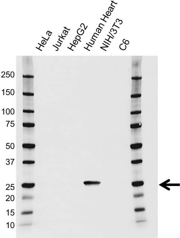 Anti Troponin I (Cardiac) Antibody (PrecisionAb Monoclonal Antibody) gallery image 1
