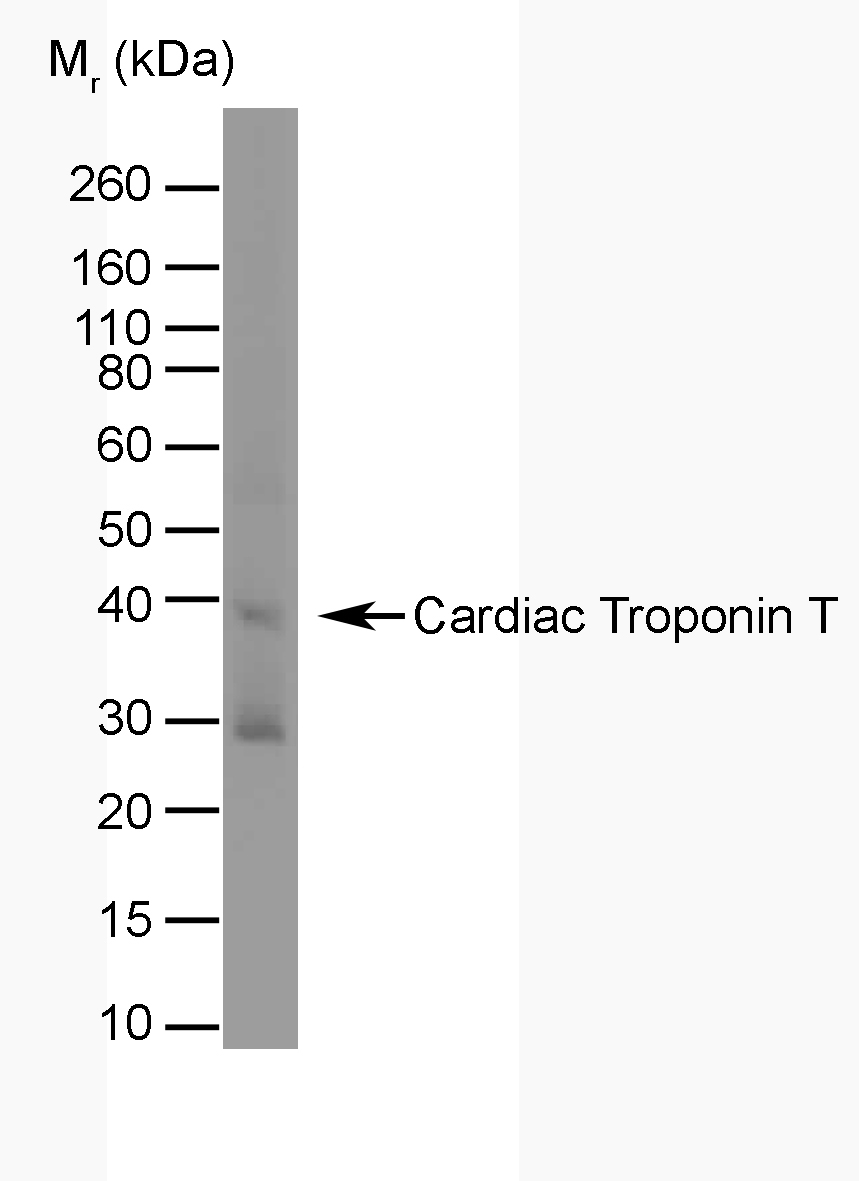 Anti Troponin T Cardiac Isoform 1 Antibody, clone TT44 (BGN/1288/44) gallery image 1