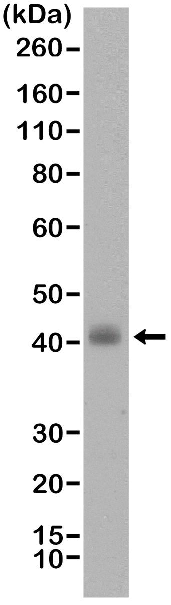 Anti TTF1 Antibody, clone RM373 thumbnail image 1