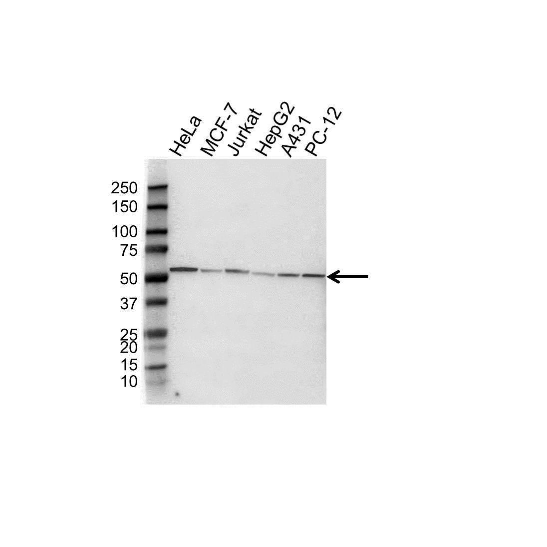 Anti Tubulin Alpha 8A Chain Antibody, clone OTI2G6 (PrecisionAb™ Monoclonal Antibody) gallery image 1