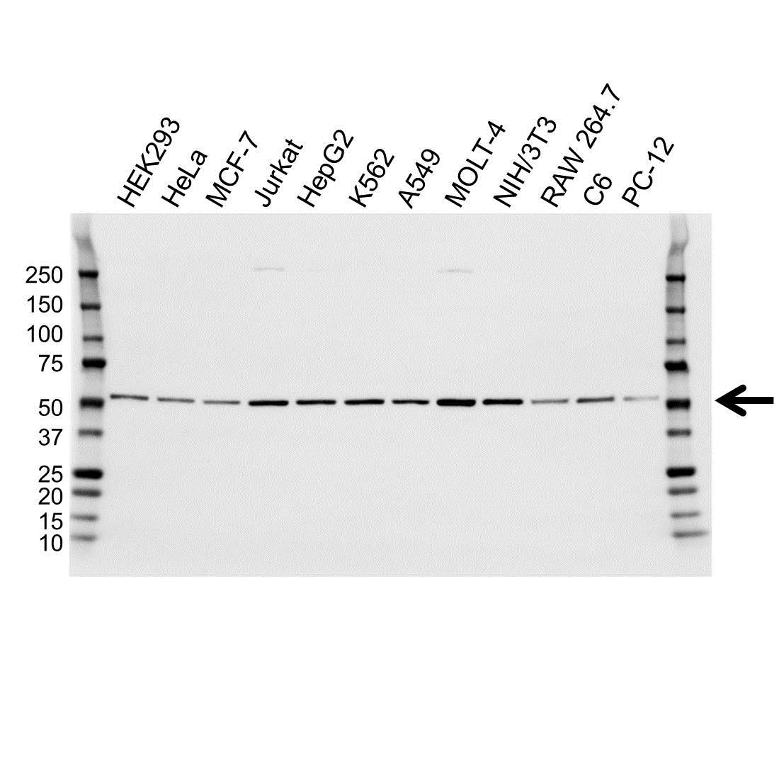 Anti Tubulin Beta 2A Chain Antibody (PrecisionAb™ Monoclonal Antibody) gallery image 1