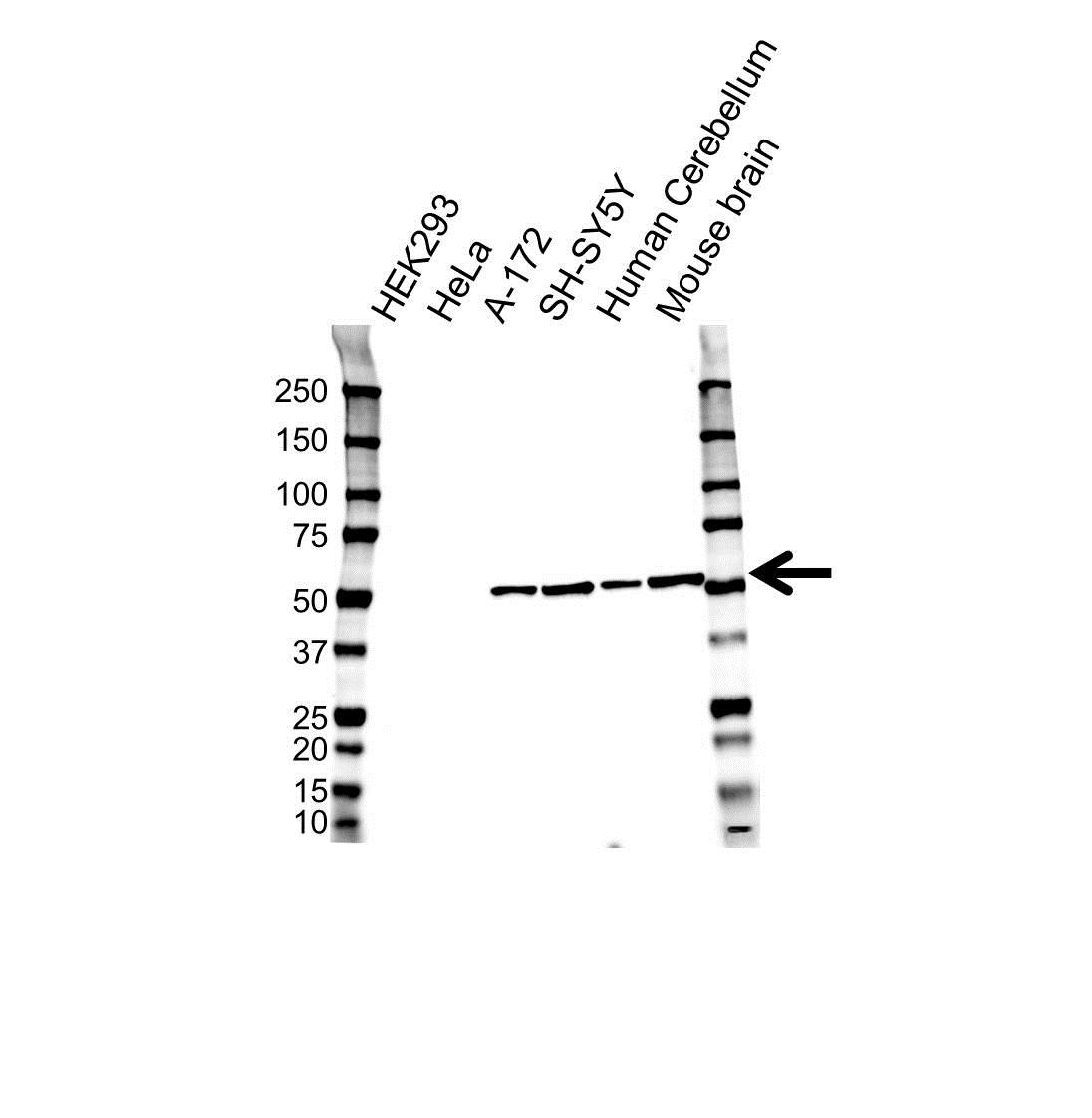 Anti Tubulin Beta 3 Antibody, clone OTI5H2 (PrecisionAb™ Monoclonal Antibody) gallery image 1