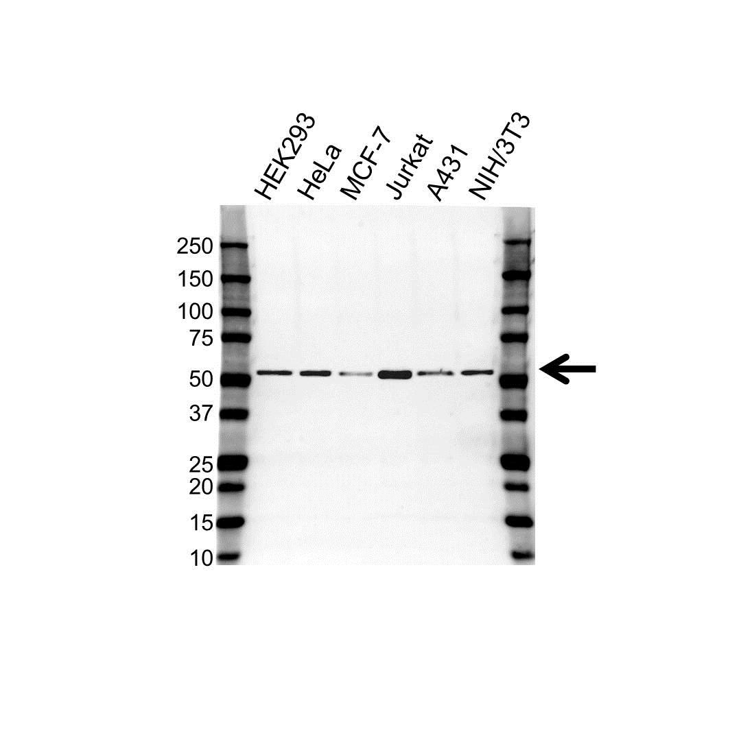 Anti Tubulin Beta Chain Antibody (PrecisionAb Monoclonal Antibody) gallery image 1