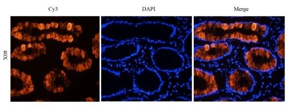 Anti Tumor Associated Glycoprotein 72 (Satumomab Biosimilar) Antibody, clone B72.3 thumbnail image 1
