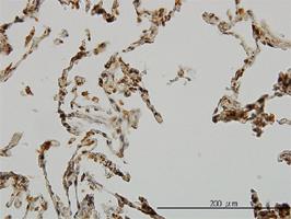 Anti Human UBE3A Antibody, clone 2F6 thumbnail image 1