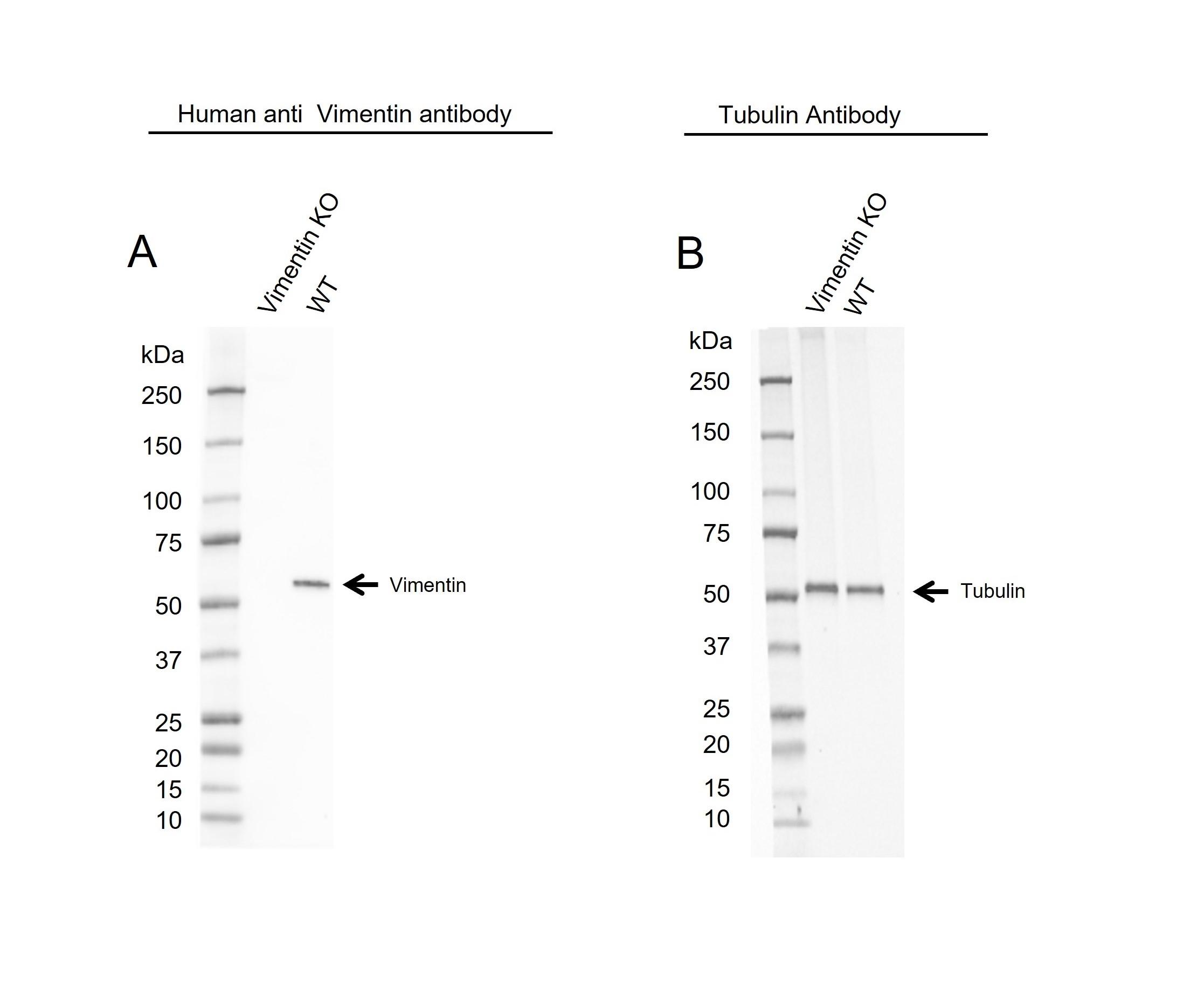 Anti Vimentin Antibody, clone AbD2701 (PrecisionAb Monoclonal Antibody) thumbnail image 4