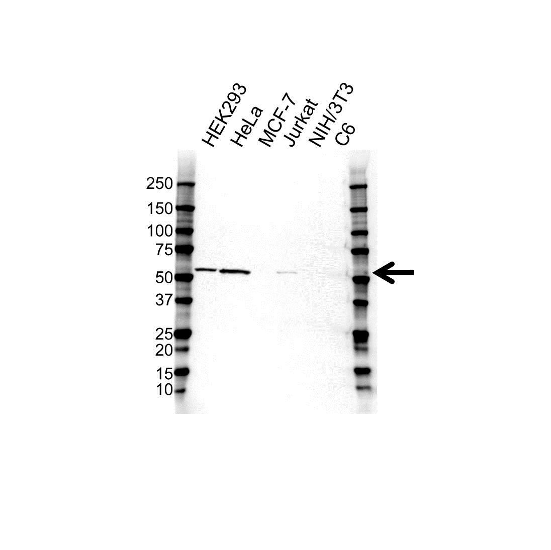 Anti Vimentin Antibody (PrecisionAb™ Monoclonal Antibody) gallery image 1