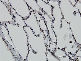 Anti Human Vitamin D Receptor Antibody, clone 2F4 thumbnail image 1