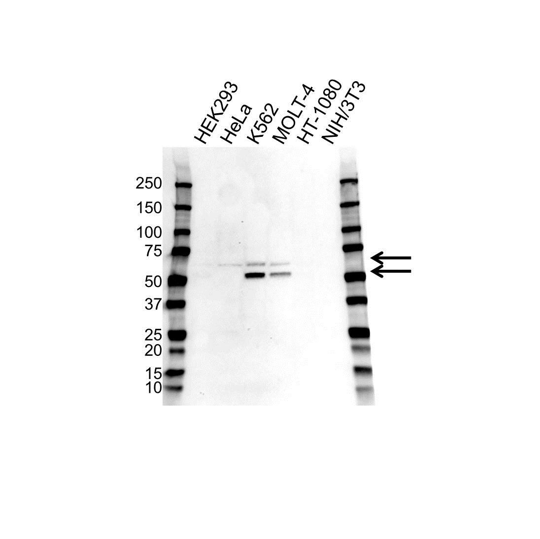 Anti Wilms Tumor 1 Antibody (PrecisionAb Monoclonal Antibody) gallery image 1