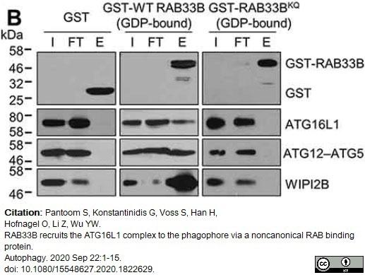 Anti WIPI2 Antibody, clone 2A2 gallery image 1