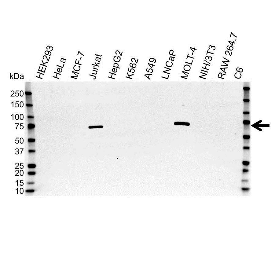 Anti ZAP 70 Antibody (PrecisionAb Monoclonal Antibody) gallery image 1