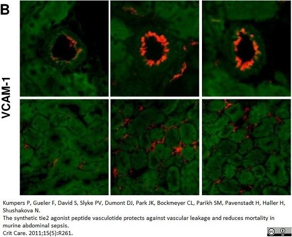 Anti Mouse CD106 Antibody, clone MVCAM A (429) thumbnail image 2