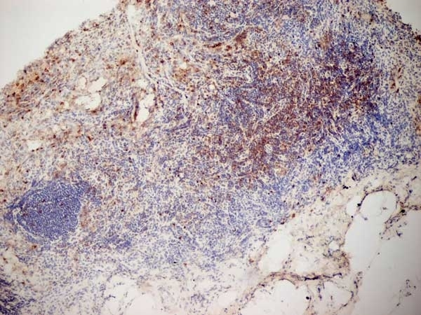 Anti Mouse CD3 Antibody, clone KT3 gallery image 12