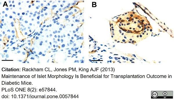 Anti Mouse CD34 Antibody, clone MEC14.7 thumbnail image 11