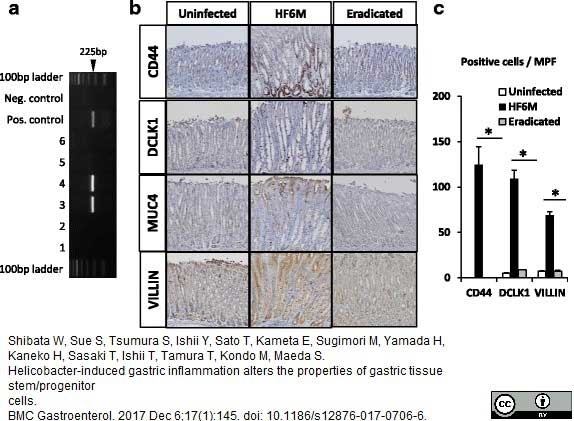 Anti Mouse CD44v6 Antibody, clone 9A4 thumbnail image 3