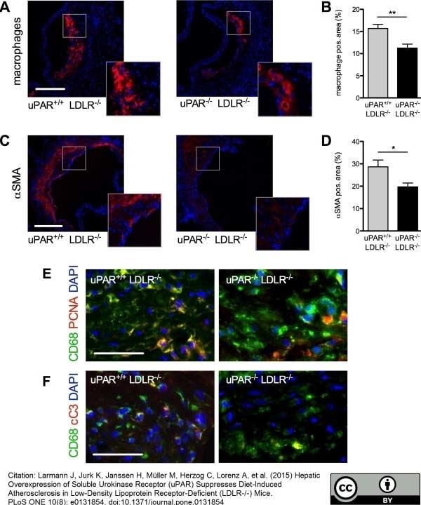 Anti Mouse CD68 Antibody, clone FA-11 thumbnail image 23