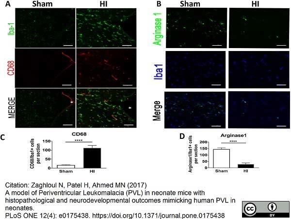 Anti Mouse CD68 Antibody, clone FA-11 thumbnail image 37