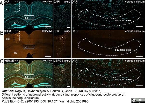 Anti Mouse CD68 Antibody, clone FA-11 thumbnail image 38