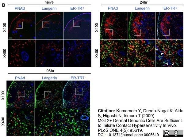 Anti Mouse ER-TR7 Antibody, clone ER-TR7 gallery image 1