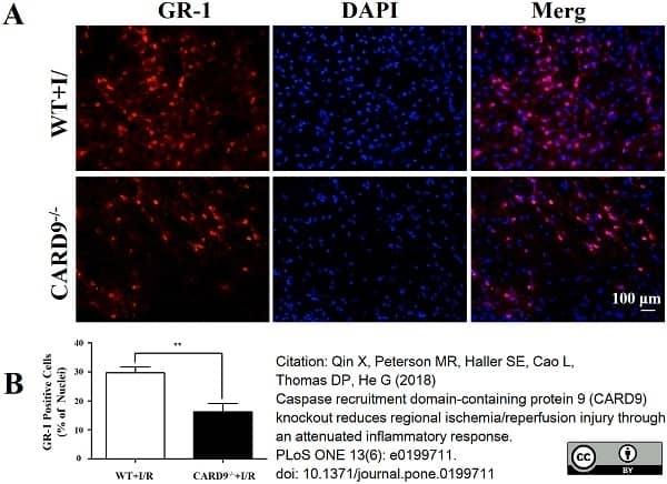 Anti Mouse Gr-1 Antibody, clone RB6-8C5 thumbnail image 15