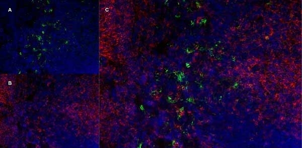 Anti Mouse Ly-6B.2 Alloantigen Antibody, clone 7/4 thumbnail image 24
