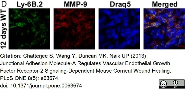 Anti Mouse Ly-6B.2 Alloantigen Antibody, clone 7/4 thumbnail image 42