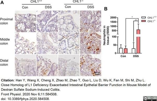 Anti Mouse Ly-6B.2 Alloantigen Antibody, clone 7/4 thumbnail image 43