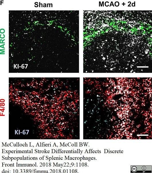 Anti Mouse MARCO Antibody, clone ED31 thumbnail image 7