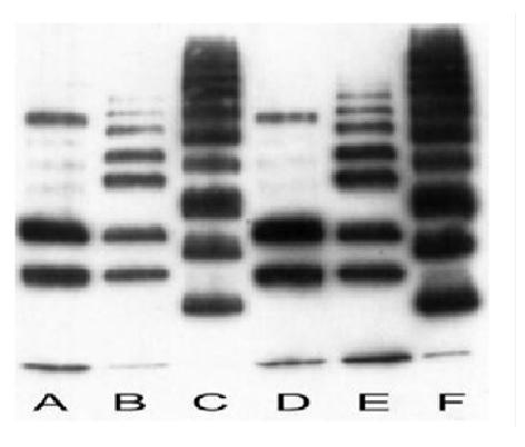 Anti Polyubiquitin Antibody, clone FK1 gallery image 1