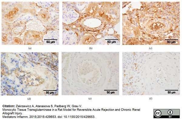Anti Rat CD163 Antibody, clone ED2 thumbnail image 16