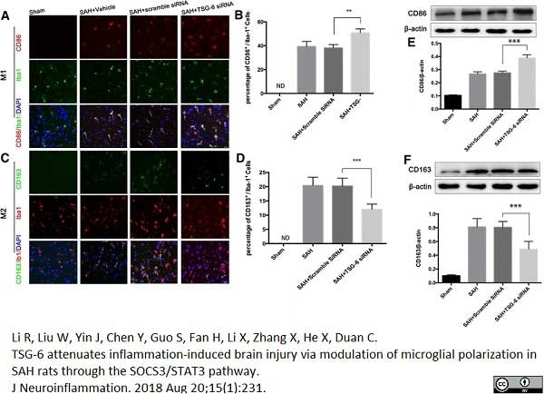 Anti Rat CD163 Antibody, clone ED2 thumbnail image 18