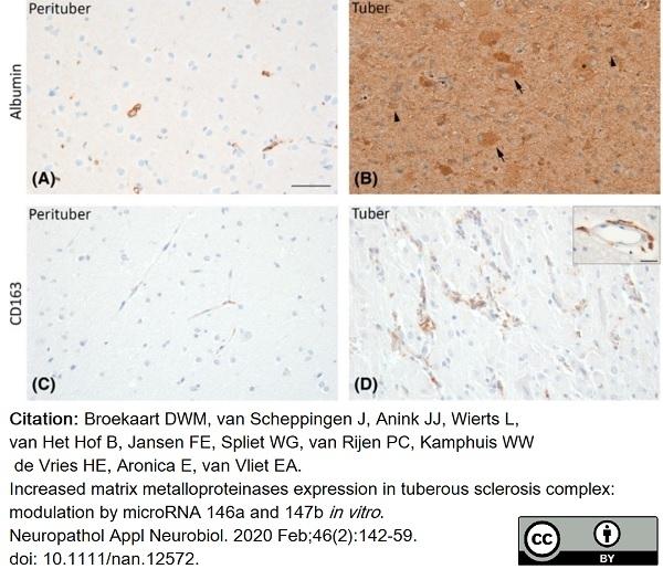 Anti Rat CD163 Antibody, clone ED2 thumbnail image 22