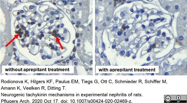Anti Rat CD68 Antibody, clone ED1 thumbnail image 50