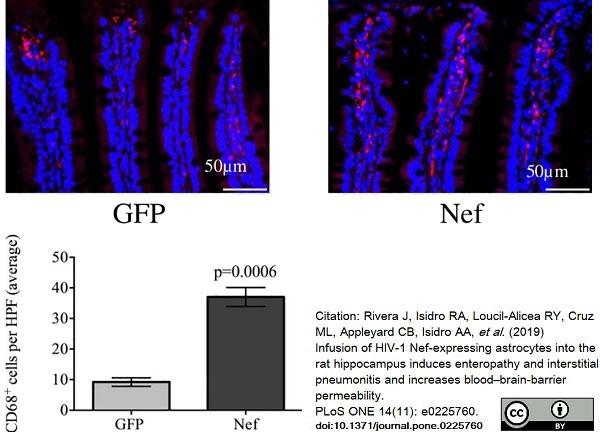 Anti Rat CD68 Antibody, clone ED1 thumbnail image 54