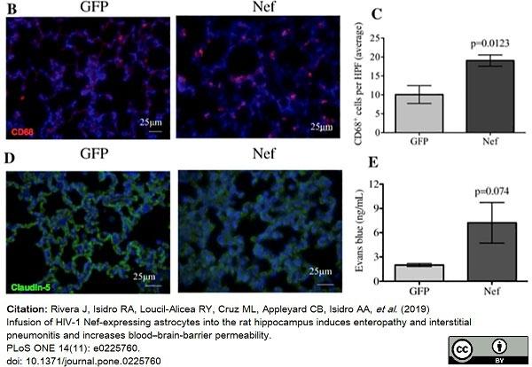 Anti Rat CD68 Antibody, clone ED1 thumbnail image 55