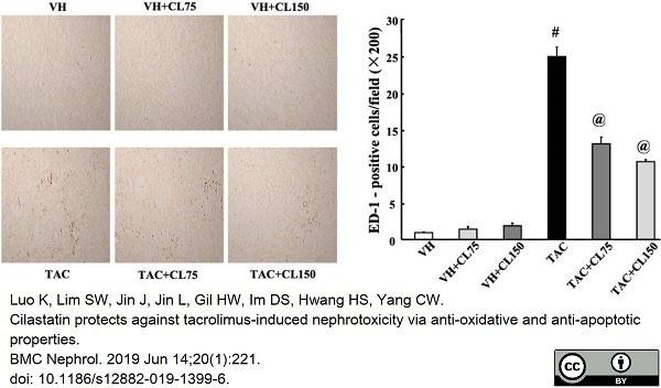 Anti Rat CD68 Antibody, clone ED1 thumbnail image 56