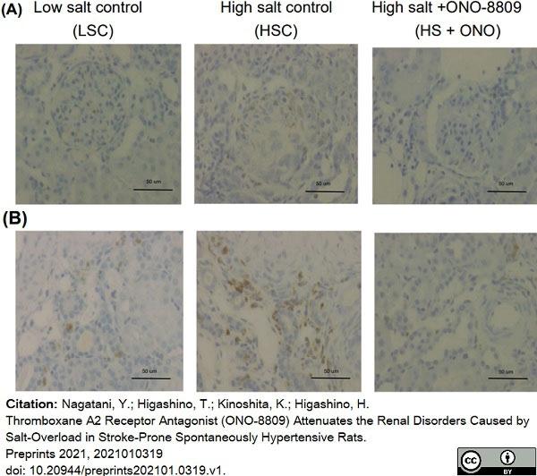 Anti Rat CD68 Antibody, clone ED1 thumbnail image 64