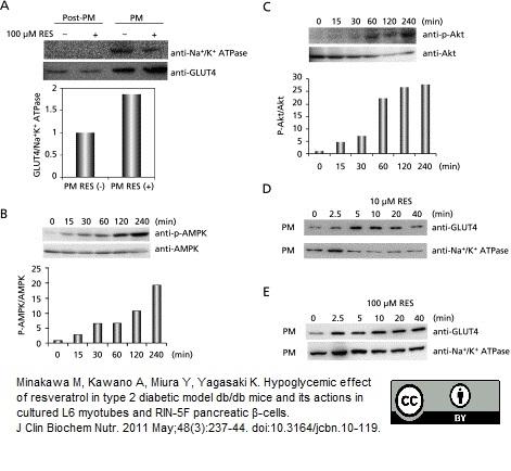 Anti Glucose Transporter 4 Antibody, clone 1F8 thumbnail image 2