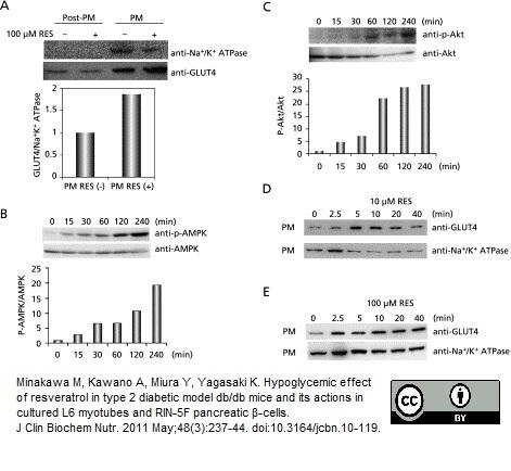 Anti Glucose Transporter 4 Antibody, clone 1F8 thumbnail image 3