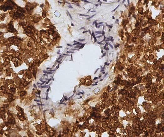 Anti Sheep CD45 Antibody, clone 1.11.32 thumbnail image 2