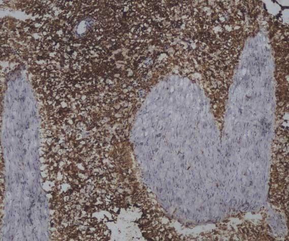 Anti Sheep CD45 Antibody, clone 1.11.32 thumbnail image 5