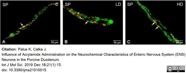 Anti Substance P Antibody, clone NC1/34 thumbnail image 17