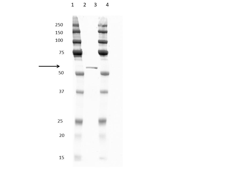 Anti Penta Histidine Tag Antibody, clone ABD2.2.20 gallery image 1