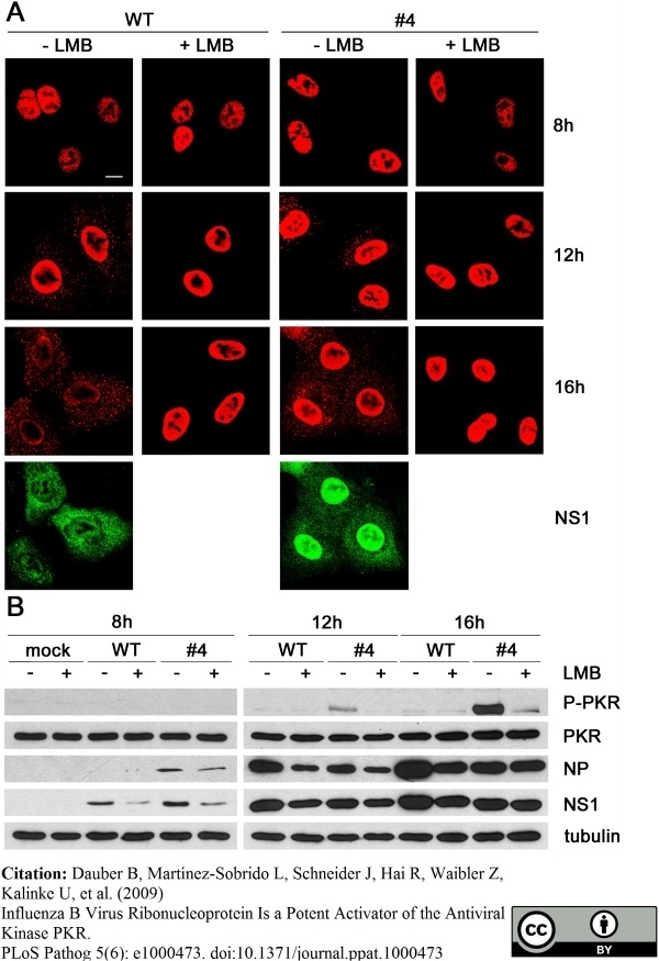 Anti Influenza B Nucleoprotein Antibody, clone B017 (B35G) thumbnail image 2