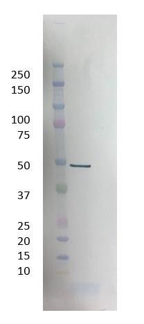 SARS-CoV Nucleoprotein Antibody|3861|MCA6372