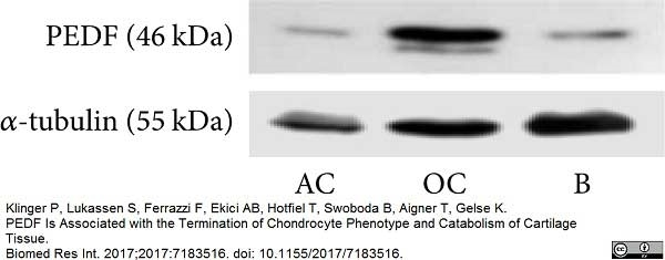 Anti Tubulin Alpha Antibody, clone YL1/2 thumbnail image 10