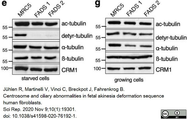 Anti Tubulin Alpha Antibody, clone YOL1/34 thumbnail image 13