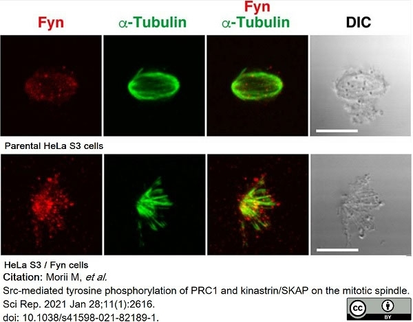 Anti Tubulin Alpha Antibody, clone YOL1/34 thumbnail image 16